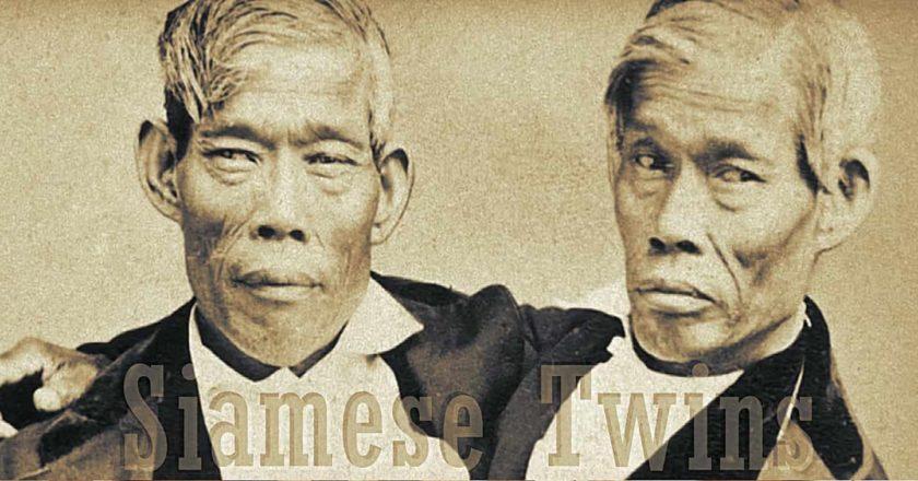 แฝดสยาม อิน-จัน Siamese Twins